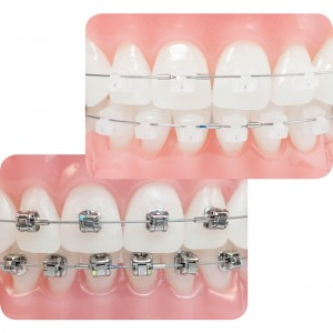 orthodontie-75012-Paris-orthomedina-brackets-auto-ligaturants